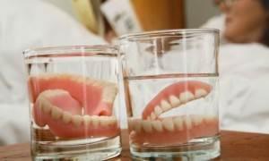 Виды-зубных-протезов-Уход-за-зубными-протезами-2